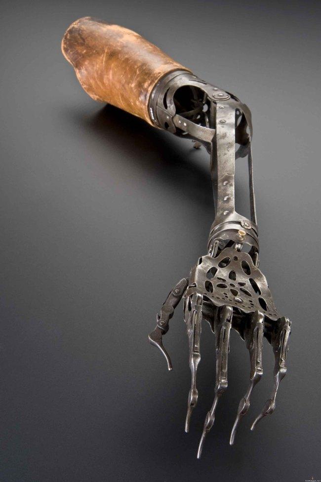 Käsiproteesi